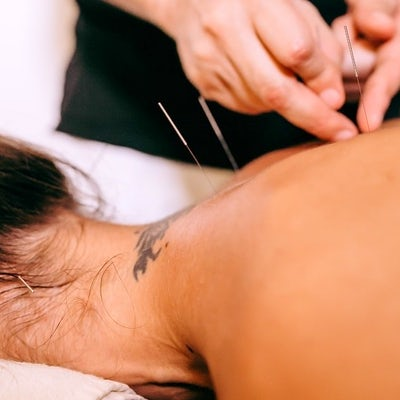 dry-needling-faqs-youve-been-asking-answered